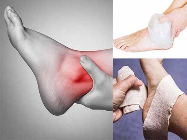 Lật sơ mi cổ chân là gì? Cách chưa trị hiệu quả nhất